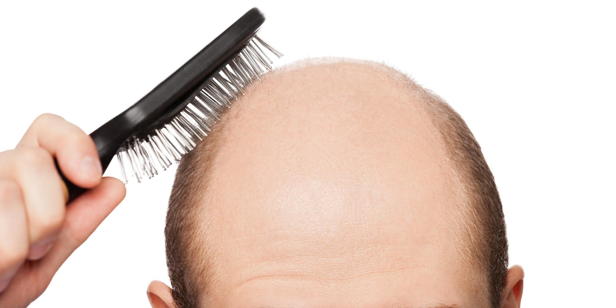 Rješenja za gubitak kose